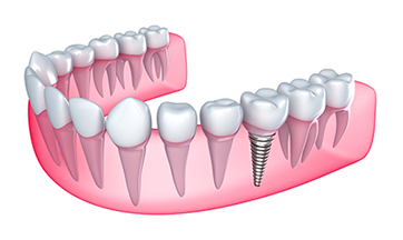 Guided Dental Implants Franklin KY
