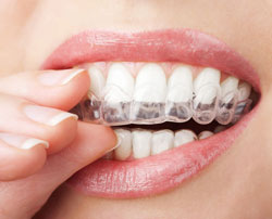 Invisalign in Franklin, KY